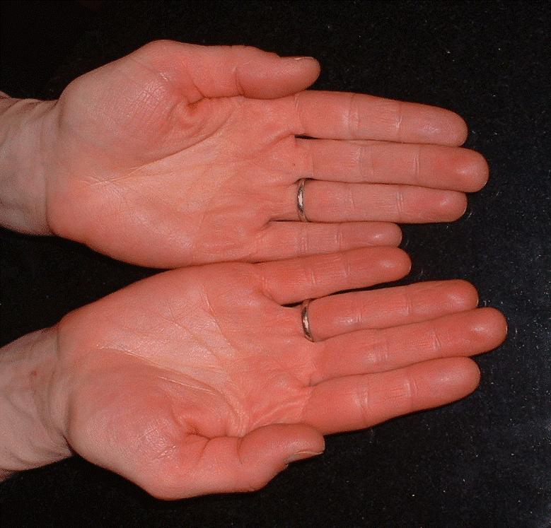 Atopic Dermatitis North West Allergy Network